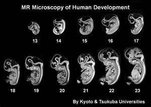 Human development (Kyoto and Tsukuba universities)